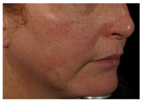 Why Is My Skin So Red? By Beauty Salon Hobbiton – Call Us On 07 888 9960